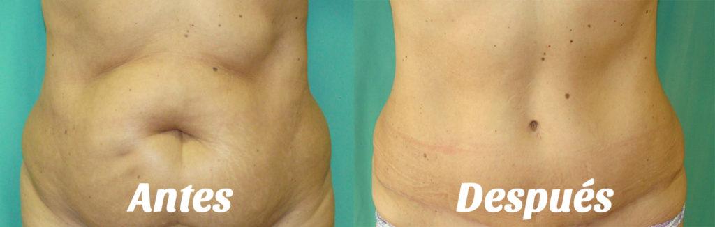 abdominoplastia: antes y despues