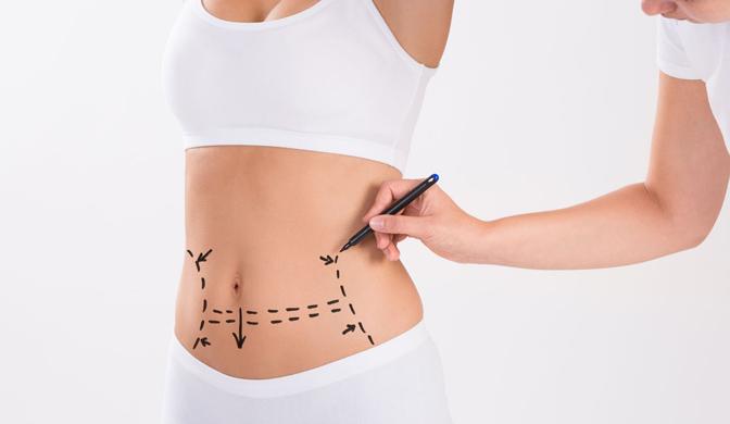 Diferencias Abdominoplastia Y Liposucción